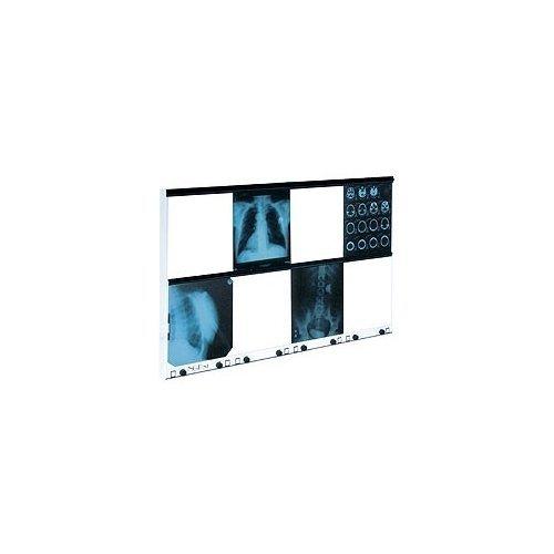 Negatoskop Wysokiej Częstotliwości, z Regulacją Luminacji, NGP-81HF