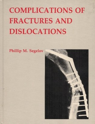 Segelov Philiip M. - Complications of Fractures and Dislocations.