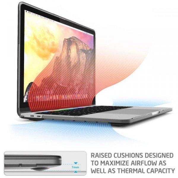 Supcase Iblsn Hardshell Macbook Pro 13 2016-2019 Black