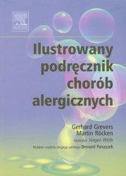 Ilustrowany podręcznik chorób alergicznych