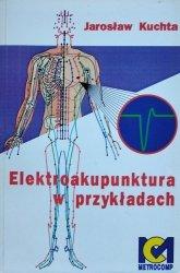 Jarosław Kuchta • Elektroakupunktura w przykładach