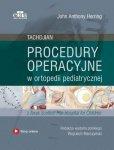 Procedury operacyjne w ortopedii pediatrycznej