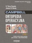 Campbell Ortopedia Operacyjna TOM 1