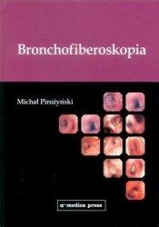 Bronchofiberoskopia