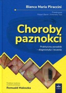 Choroby paznokci Praktyczny poradnik - diagnostyka i leczenie