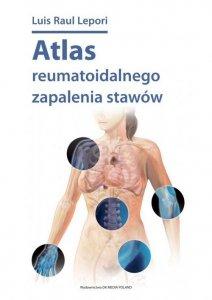 Atlas reumatoidalnego zapalenia stawów