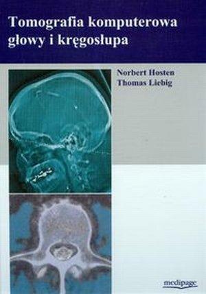 Tomografia komputerowa głowy i kręgosłupa