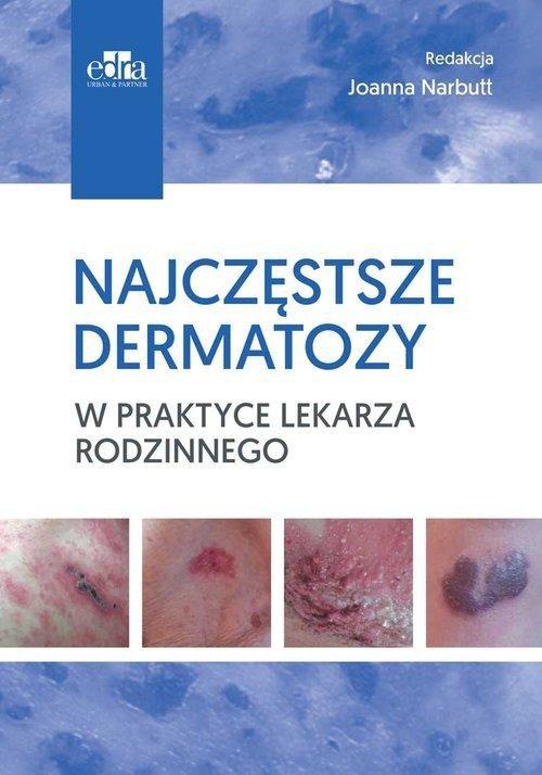 Najczęstsze dermatozy w praktyce lekarza rodzinne