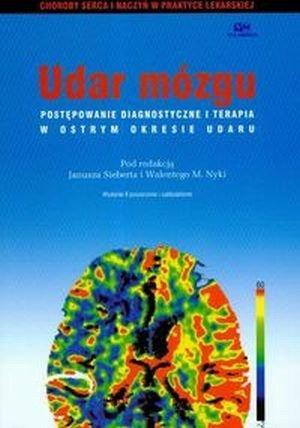 Udar mózgu postępowanie diagnostyczne i terapia w ostrym...
