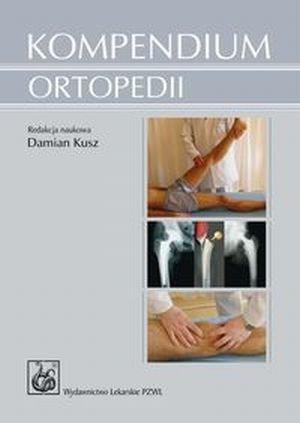 Kompendium ortopedii