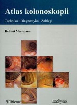 Atlas kolonoskopii