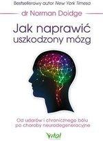 Jak naprawić uszkodzony mózg. Od udarów i chronicznego bólu po choroby neurodegeneracyjne