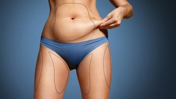 Liposukcja ultradźwiękowa – na czym polega i czy warto zainwestować w profesjonalny sprzęt do gabinetu kosmetycznego?