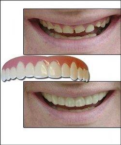 Nakładka na zęby - Hollywood Smile