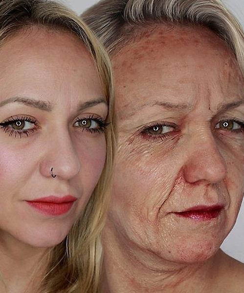 Efekt posatażania skóry