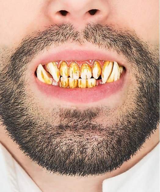 Sztuczne zęby - Troll
