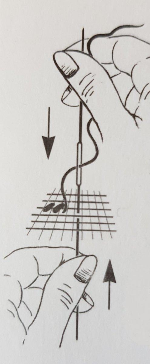 Schemat użycia igieł dwustronnych