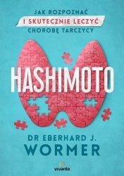 Hashimoto. Jak rozpoznać i skutecznie leczyć chorobę tarczycy